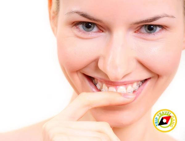 จัดฟัน ดัดฟัน แฟชั่น การดูแลสุขภาพฟัน (2)