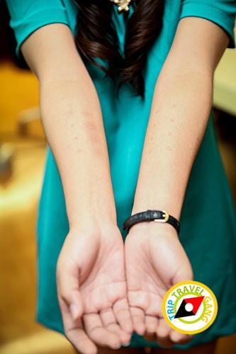 โรคภูมิแพ้เรื้อรัง การักษา อาหาร วิธีการดูแลตัวเอง ทำอย่างไรหาย Skin Test (2)